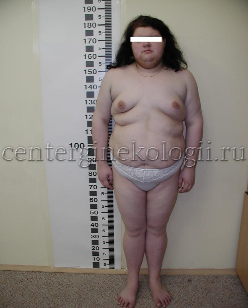 поликистоз яичников симптомы и причины фото
